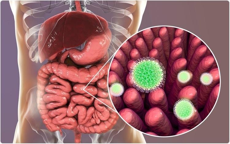 Vacina de rotavírus reduz a incidência de diabetes tipo 1 em 41%